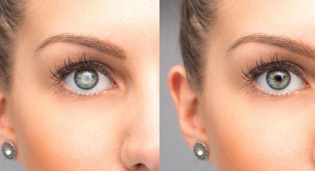 Cataracts & Vision loss